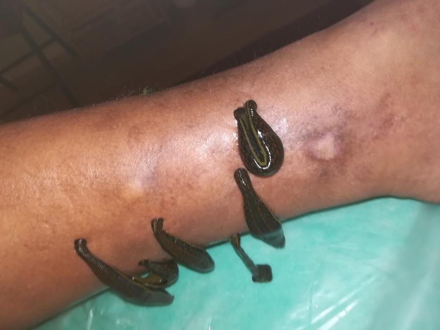Ödémás láb kezelése orvosi piócával - NyirokCentrum Debrecen